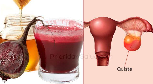 Que tan malos son los quistes en los ovarios