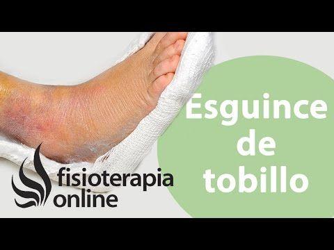 M Esguinces y fracturas del pie y tobillo - Que hacer nada más retirar la inmovilización.   Fisioterapia Online