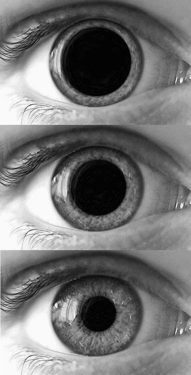 Dilated pupils following the consumption of illegal stimulants, e.g. cocaine, speed, mephedrone, Benzo Fury et al.