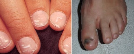 Nail fungus symptoms may appear like black or white patches on nails that cannot be removed by rubbing some solution.  www.fungavir.com  |  888-407-8780