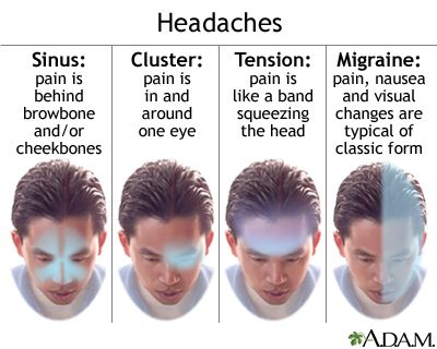 Illustration showing the location of 4 common types of headaches ...
