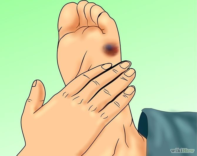 How to Treat a Blood Blister