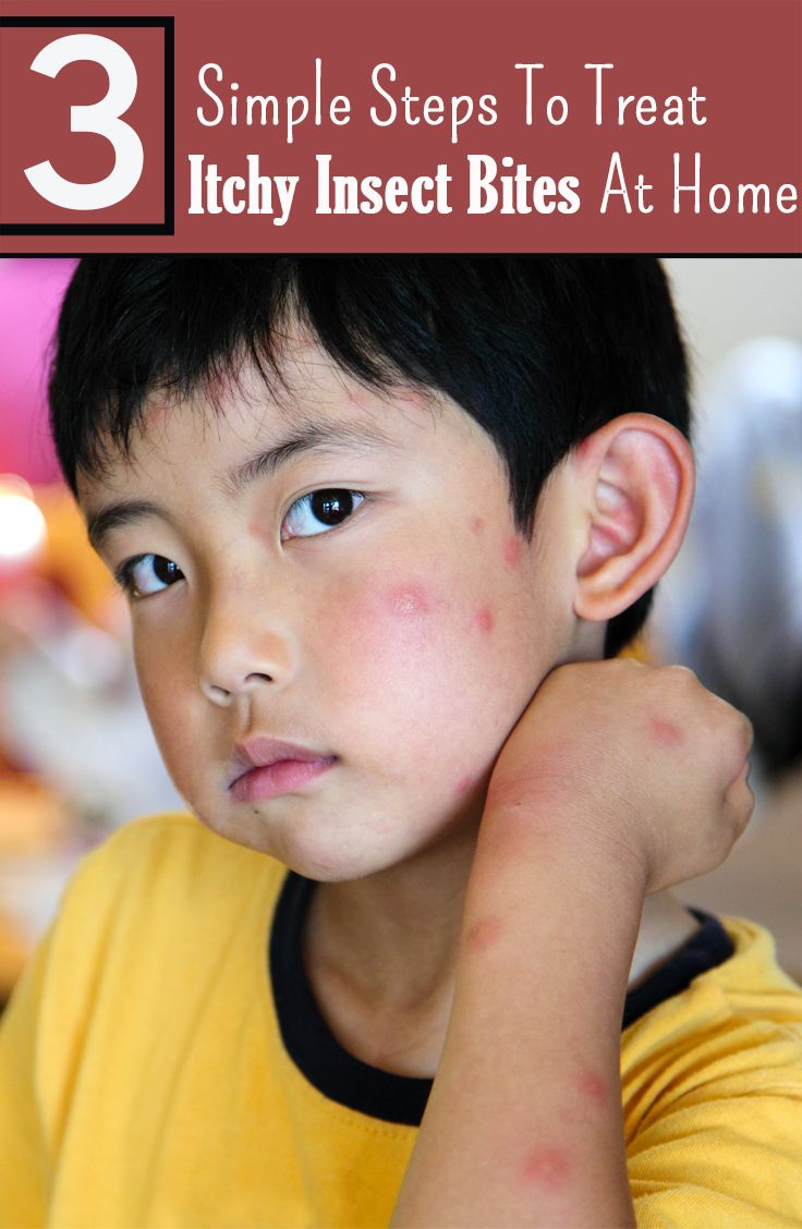 3 Simple Steps To Treat Insect Bites In Children