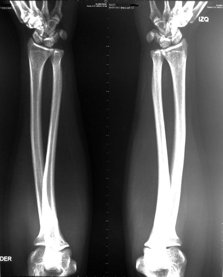 Radiografía del antebrazo, bilateral: -Clasificación articulaciones. -Tejido compacto y esponjoso. -Ejes de movimientos y proyecciones.