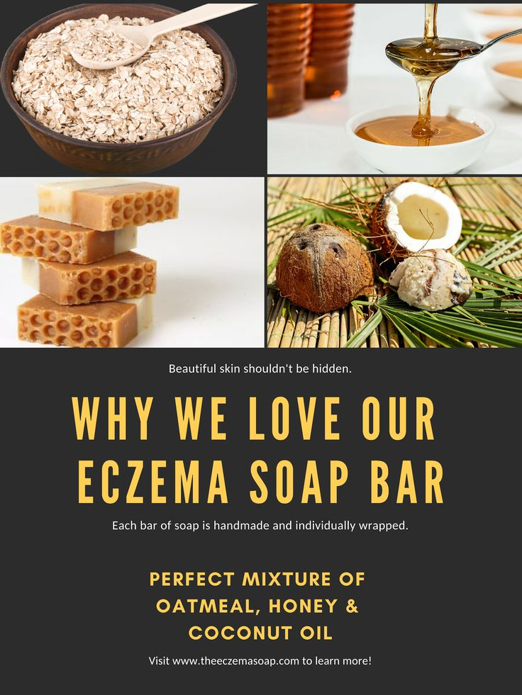 Honey Eczema Soap (With images) Eczema soap, Eczema, Bar