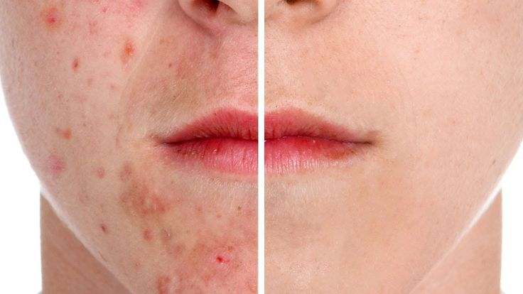 How to Remove Acne in Photoshop Tutorial Fast And Easy Method