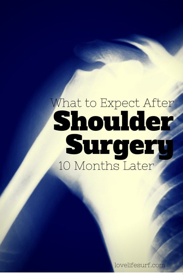 "Are you scheduled for shoulder surgery? Here's what to expect 10 months after surgery — physical therapy, activity, range of motion, strength and when to expect to feel ""normal."""