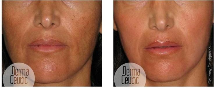 Dermaceutic Spot Peel And Treatment Program Depigmentation
