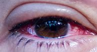"""Conjunctivitis Pink Eye Conjunctivitis, or """"pink eye,"""" is an infection or swelling in the eye area that causes inflammation of the conjunctiva, giving the eye a red or pink color."""