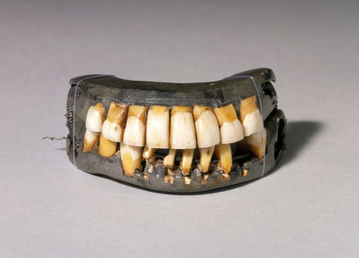 """George Washington suffered from poor dental health and spent his life in frequent pain, employing a variety of tooth cleaners, dental medicines, and dentures. Dr. John Baker fabricated a partial denture with ivory that was wired to Washington's remaining real teeth. When Washington was inaugurated President in 1789, only one real tooth remained in his mouth.""  - Mount Vernon"