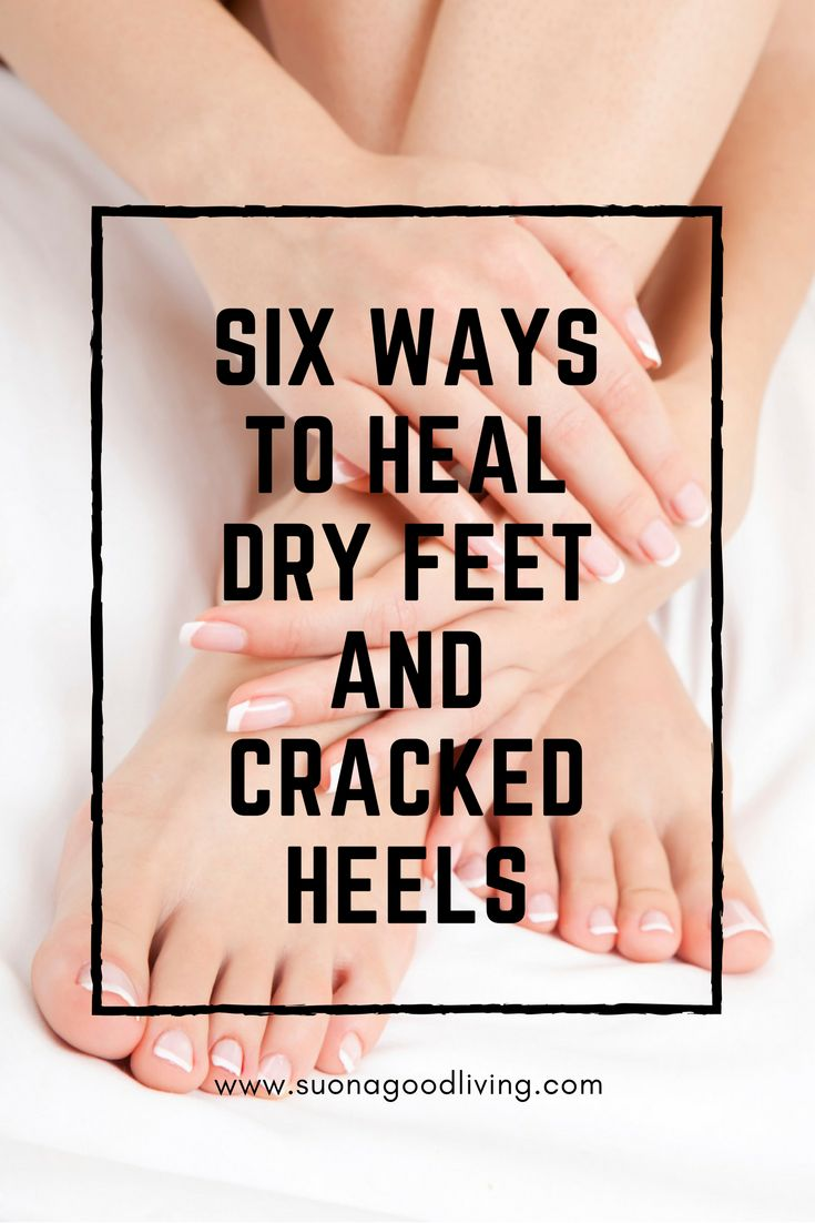 Ways to heal dry feet and cracked heels. suonagoodliving.com