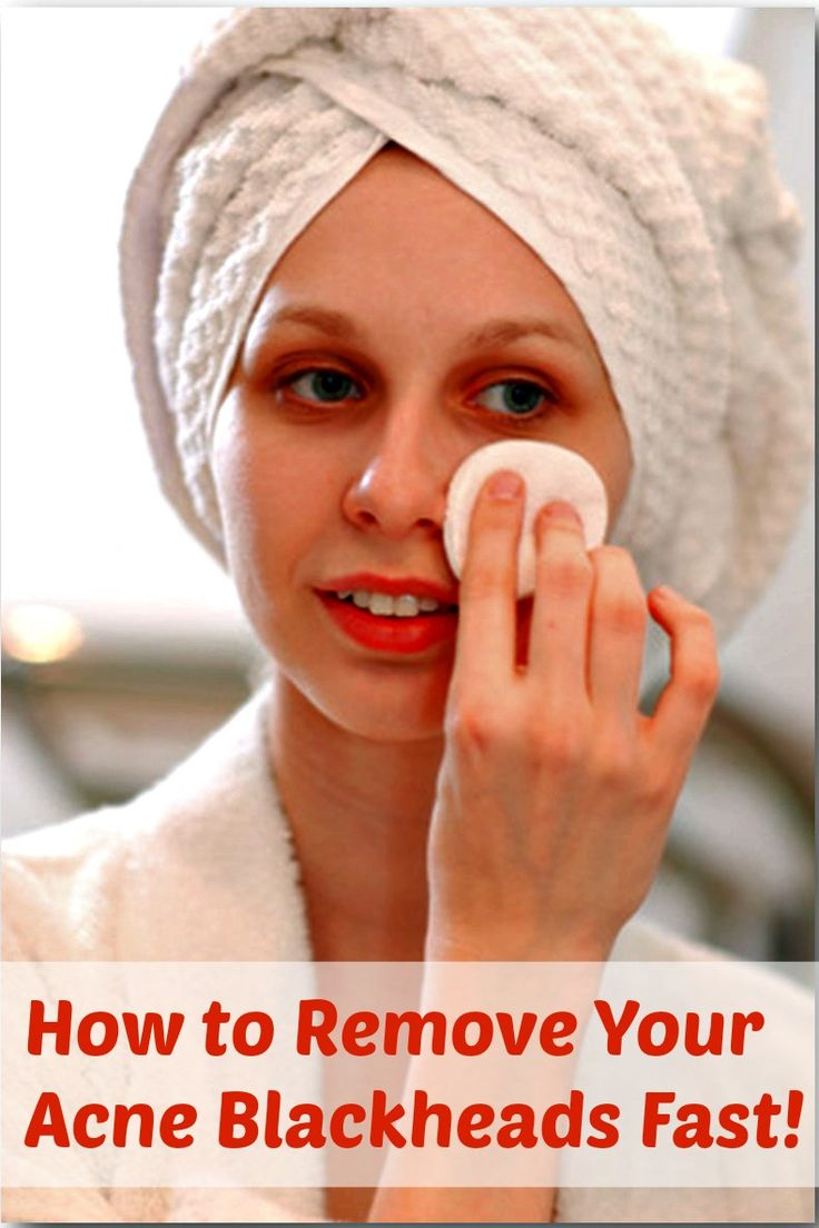 How to Remove Your Acne Blackheads Fast! #acne #blackheads