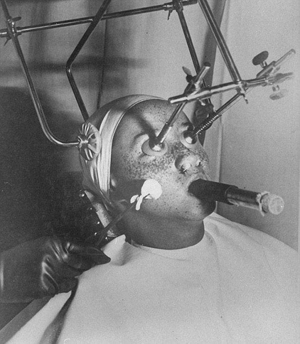 """O """"congelamento"""" de sardas com dióxido de carbono era um tratamento popular na década 30. Os olhos dos pacientes eram protegidos com plugs herméticos e suas narinas vedadas. Eles tinham que respirar através de um tubo."""