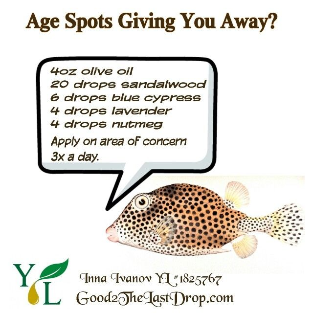 Liver spots are changes in skin color that occur in older skin. The increased color may be due to aging, exposure to the sun or other sources of ultraviolet light, or causes that are not known. Liver spots are very common after age 40. They occur most often on areas that have had the greatest sun exposure, such as the: Backs of the hands Face Forearms Forehead Shoulders No treatment is needed in most cases. You can improve the appearance of your skin by using skin bleaching lotions or…