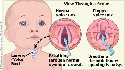 tracheomalacia and breastfeeding