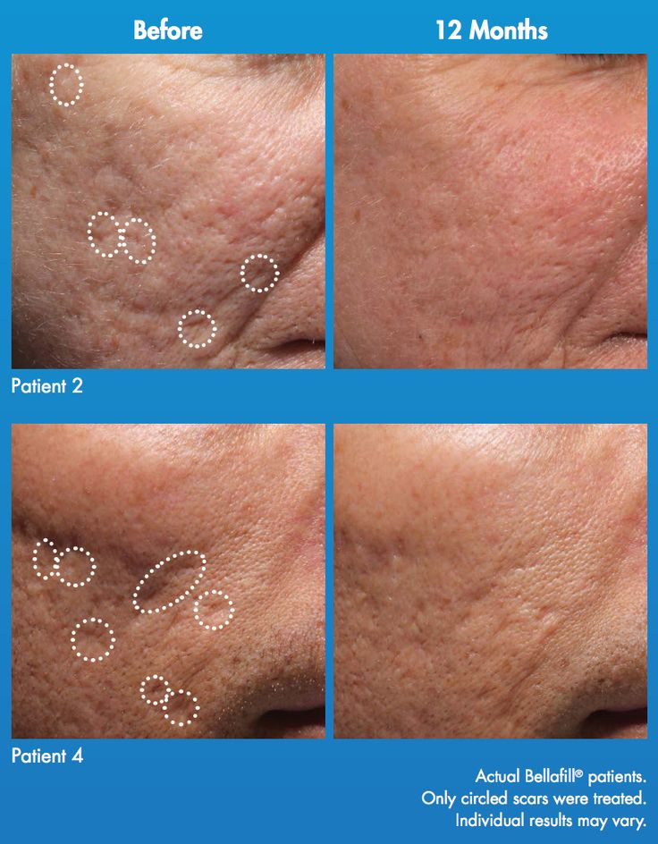 Do you feel insecure about #acne #scars? It may be time to consider a #filler that can help. With #Bellafill, the collagen works to add #volume below atrophic acne scars to lift them to the level of surrounding skin. Schedule a consultation with Dr. Mani and see if Bellafill is right for you (858) 454-2700.