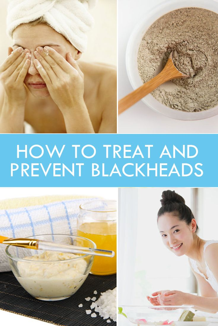 How to Treat and Prevent Blackheads #skincare #beauty #allnatural #green