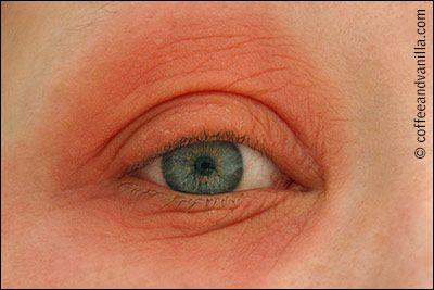 Autumn Allergy? Mould Spores Allergy? Dust Mite Allergy?