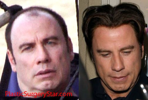 John Travolta has undoubtedly chosen some weird hairpieces in his time. Description from plasticsurgeryproof.com. I searched for this on bing.com/images