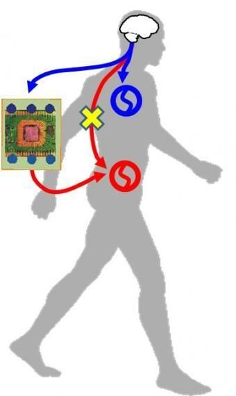 Scientists bypass spinal cord non-invasively to trigger walking