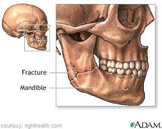 Mandibular Fracture Reduction