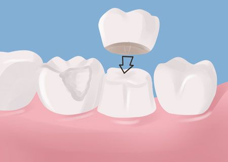 Dental Crowns Potomac MD- Gold, Ceramic & Porcelain Crown Procedure