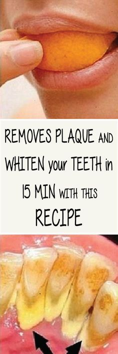 PLAQUE!! Keeping your teeth clean and healthy is an essential part of proper oral hygiene. Plaque on your teeth is usually caused by poor oral hygiene