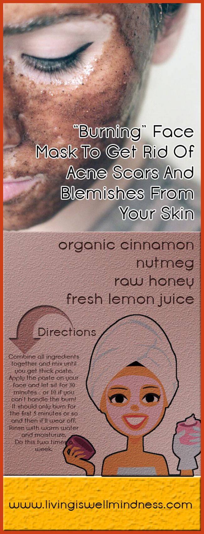 Acne Scar Removal - Simple Ways to Treat Acne Scars >>> You can find more details by visiting the image link. #AcneScarRemoval