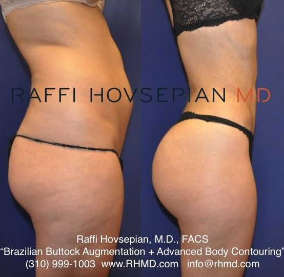 Before and after body transformation by Dr. Raffi Hovsepian. This patient underwent Dr. Hovsepian's advanced liposculpture technique, Shrink Wrap Liposuction and Brazilian Buttock Augmentation using her own fat. 
