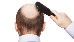 You don't need to shave your head to hide your baldness. Fight baldness with hair transplant surgery. Ask our experts. Call now +91 8882100007