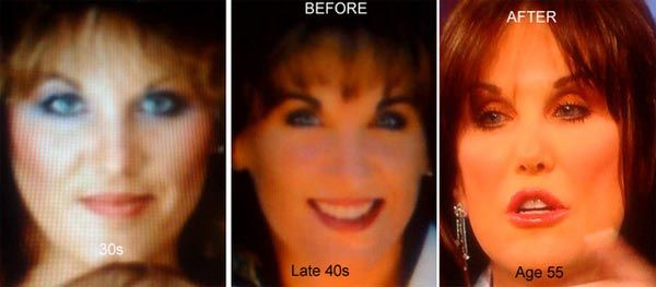 Robin McGraw Plastic Surgery Before & After Photos - http://plasticsurgerytalks.com/robin-mcgraw-plastic-surgery/