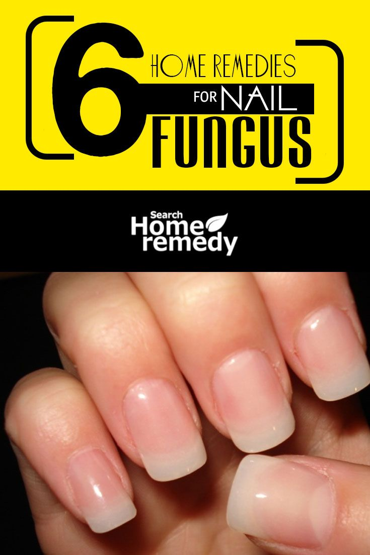 6 Home Remedies For Nail Fungus