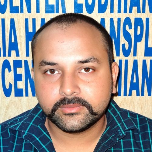 Hair Transplant Cost in Ludhiana | Hair Transplant Cost in Punjab India