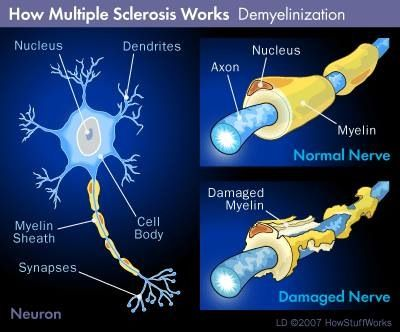 Repair those damaged neurons the natural way, with doTERRA Essential oils. Look into DDR Prime, Life Long Vitality Pack and Frankencence for starters. Contact me today for more info : www.mydoTerra.com/annelarocca