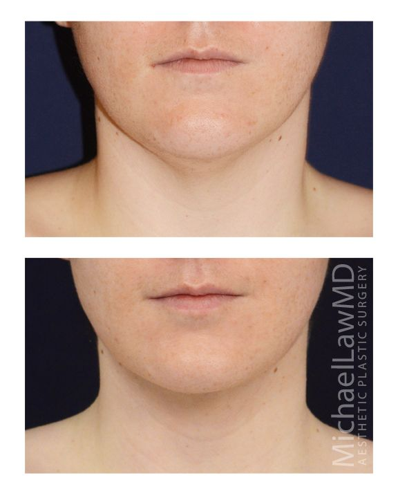 Neck Liposuction / Chin Lipo suction 7 - Michael Law MD Raleigh Plastic Surgery, Raleigh Plastic Surgeon, Plastic Surgeon Raleigh, Cosmetic Surgeon, Plastic Surgery NC, Raleigh Med Spa, The Plastic Surgery Center, Neck lift, Chin Liposuction, lower facial rejuvenation, Raleigh facelift, facelift, facial plastic surgery