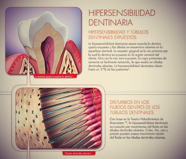 hipersensibilidad-dentinaria Requiere de evaluación Odontológica para determinar la causa exacta y el tratamiento adecuado.