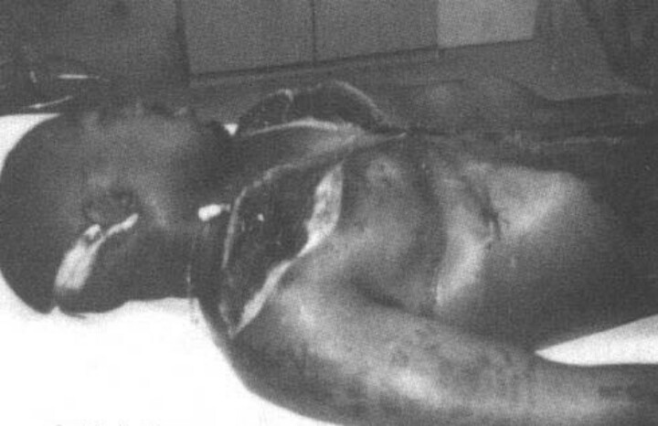 Celebrity death autopsy pictures