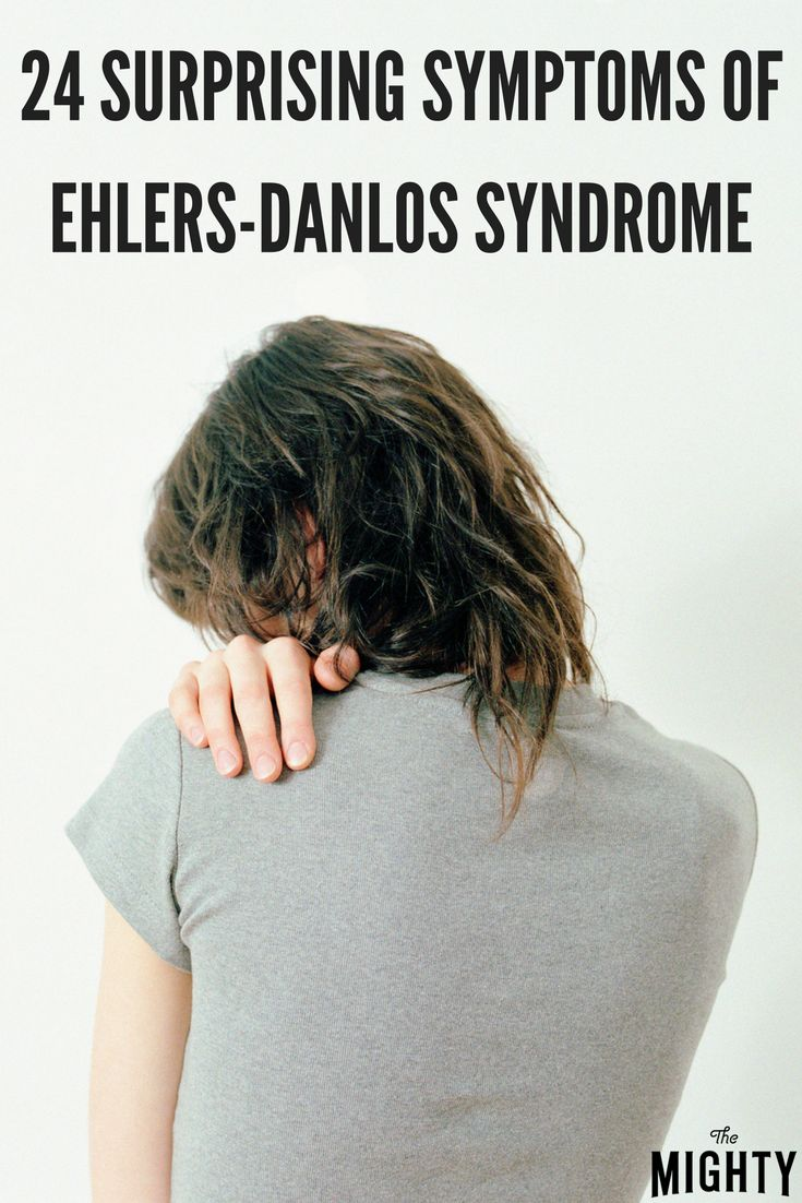 24 Surprising Physical Symptoms of EhlersDanlos Syndrome