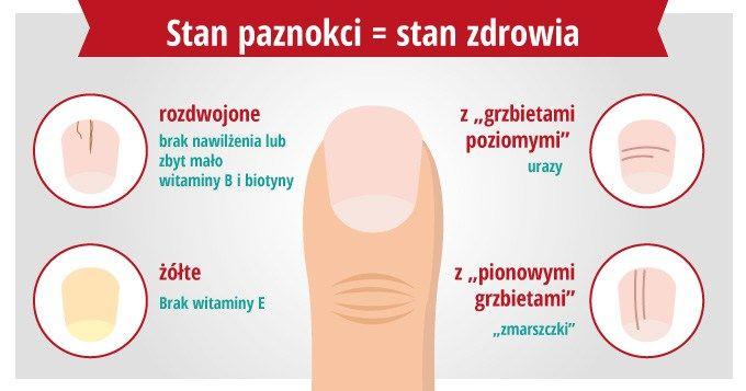 Jeśli nasze oczy są zwierciadłem duszy, to paznokcie są zwierciadłemciała. Mówią więcej niż możemy się domyślić. Łamliwe, prążkowane, rozdwojone lub żółte paznokcie mogą wskazywać na niedobory skł…