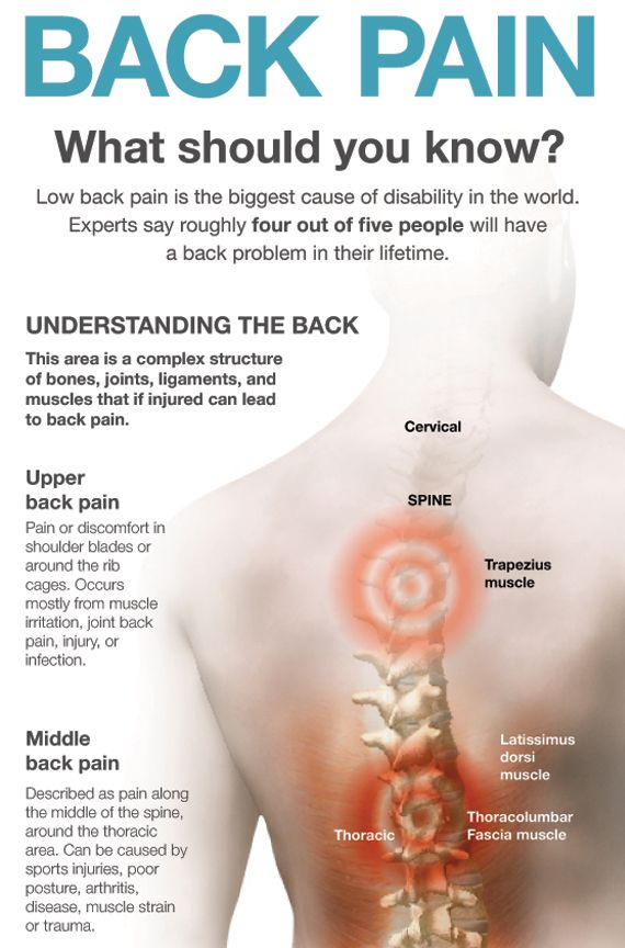 Upper Back Pain Natural Remedies