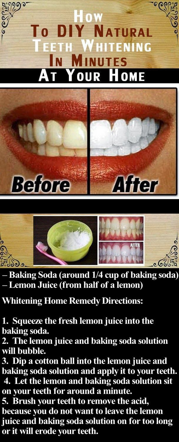 DIY Natural Teeth Whitening In Minutes At Your Home Pictures, Photos, and Images for Facebook, Tumblr, Pinterest, and Twitter