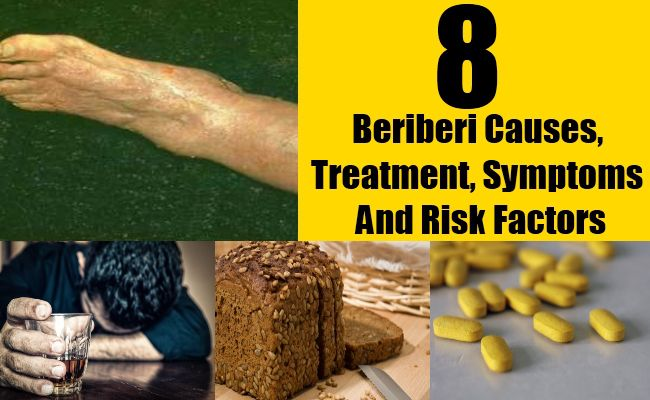 Beriberi Causes, Treatment, Symptoms And Risk Factors