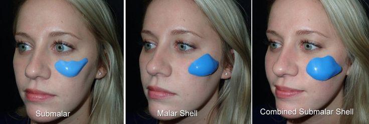 Cheek Implants Richmond VA   Facial Fillers   Midface Implants