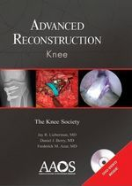 Knee Surgery eBook guide you with the step by step procedure for successful Knee Reconstruction.