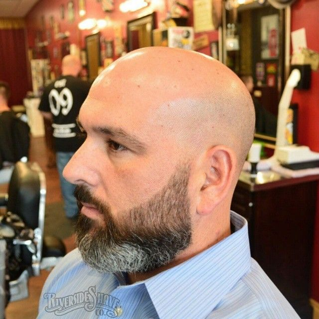 how to stop male pattern baldness