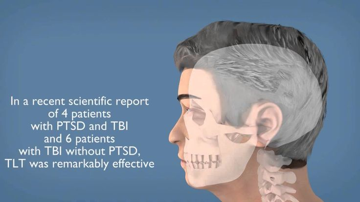 Short video overview of Transcranial Laser Therapy in a rehabilitative context.