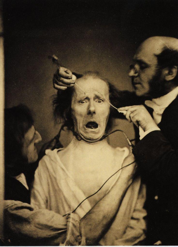 Stimulation électrique, Guillaume Duchenne de Boulogne, photographies, 1854
