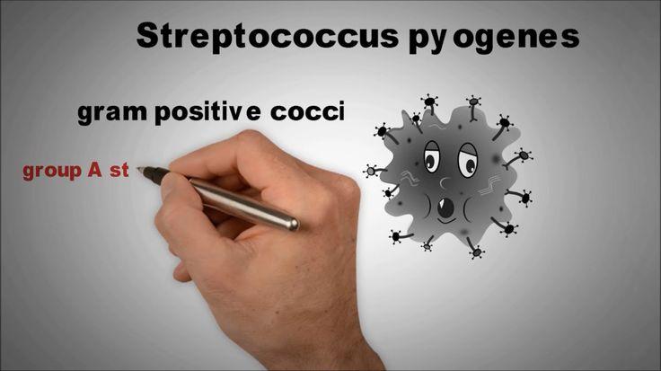 Streptococcus pyogenes quick review