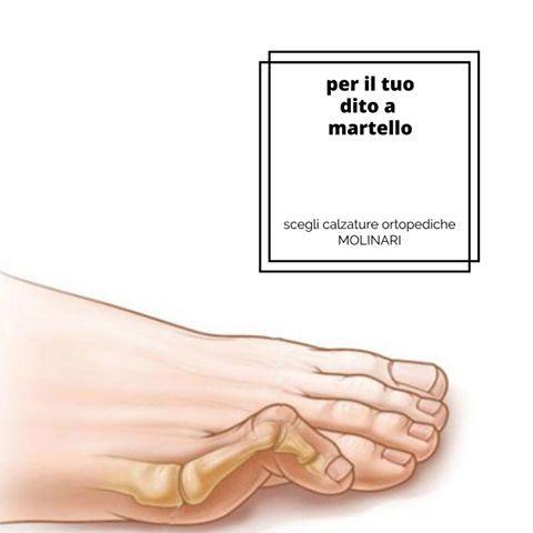 Dito a martello: Il dito a martello è una deformazione caratterizzata da una flessione della articolazione interfalangea prossimale e da una iperestensione dorsale della articolazione metatarso-falangea e della articolazione interfalangea distale che dispone il dito come il martelletto del tasto del pianoforte da cui deriva il nome. Quando l'utilizzo di scarpe comode, l'impiego di protettori in silicone o di altri dispositivi a protezione della zona dolorosa interessata non portano un…