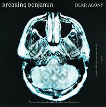 Dear Agony by Breaking Benjamin   MRI scan of Ben Burnley's head.